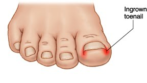 ingrown toenail - 6 Ways to Look after your feet